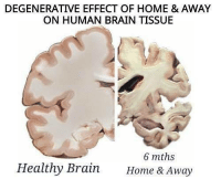 Brain: DEGENERATIVE EFFECT OF HOME & AWAY  ON HUMAN BRAIN TISSUE  6 mths  Healthy Brain  Home & Away