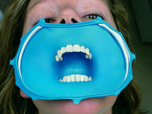 News, Sex, and Tumblr: dentagama1:    Rubber dam, also known as dental dam, is used in oral sex to reduce the risk of sexually transmitted infections (STI) and is originally invented to isolate teeth in dental procedures. http://dentagama.com/news/what-is-a-rubber-dental-dam