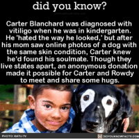 Soulmates 💕 love dogsofinsta dogs ➡📱Download our free App: [LINK IN BIO]: did vou know?  Carter Blanchard was diagnosed with  vitiligo when he was in kindergarten.  He 'hated the way he looked,' but after  his mom saw online photos of a dog with  the same skin condition, Carter knew  he'd found his soulmate. Though they  live states apart, an anonymous donation  made it possible for Carter and Rowdy  to meet and share some hugs.  PHOTO: KATU-TV  DIDYOUKNOWFACTS.COM Soulmates 💕 love dogsofinsta dogs ➡📱Download our free App: [LINK IN BIO]