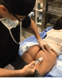 Booty, Makeup, and Girl: Did you know that the collagen stimulating injectable substance Sculptra, can also be used off label for your booty??!💉🍑🍑 Follow @skinjectables for more! 😷🤓 . . . . Skinjectables torontocosmeticsurgeryinstitute toronto injectionstoronto injections skincare lipinjections lips liplove skin beauty makeup health instagood antiaging botox filler transformation