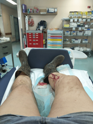 My boar gave me a Robert Baratheon goring on the weekend, had to go to emergency and have stitches...the whole ordeal less painful than watching D and D pants up GOT: DISPOSABIE  PATIENT GOWNS  NonLati  Blogel  cat  Nalex  Biogel  P LtiToN  Biogel  Biogel  aTch  Biogel  aTupel  trs n  PATSEOE  EVARO  HAAVARD  HOSTO  EPISTAXIS  ENT BOX  CENTRAL LINE  ID C  ETT LMA  9  LSCOPES  5-9  es  selcare  TRE  NASOGASTRI  IVC  ICC  TUBE  5-19  oaNUCS  -38 My boar gave me a Robert Baratheon goring on the weekend, had to go to emergency and have stitches...the whole ordeal less painful than watching D and D pants up GOT