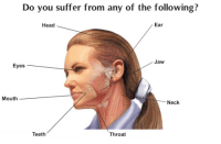 Head, The Following, and Teeth: Do you suffer from any of the following?  Head  Ear  Jaw  Eyes  Mouth  Neck  Teeth  Throat