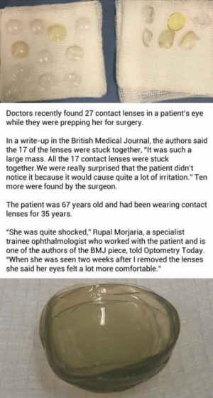 """Comfortable, Patient, and Quite: Doctors recently found 27 contact lenses in a patient's eye  while they were prepping her for surgery.  In a write-up in the British Medical Journal, the authors said  the 17 of the lenses were stuck together, """"It was such a  large mass. All the 17 contact lenses were stuck  together.We were really surprised that the patient didn't  notice it because it would cause quite a lot of irritation."""" Ten  more were found by the surgeon.  The patient was 67 years old and had been wearing contact  lenses for 35 years.  """"She was quite shocked,"""" Rupal Morjaria, a specialist  trainee ophthalmologist who worked with the patient and is  one of the authors of the BMJ piece, told Optometry Today  """"When she was seen two weeks after I removed the lenses  she said her eyes felt a lot more comfortable."""" Doctors found 27 contact lenses in a womans eye, who was scheduled for a cataract surgery."""