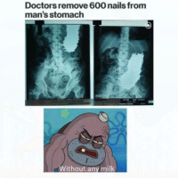 Nails, Tough, and How: Doctors remove 600 nails from  man's stomach  Without any milk How tough are ya?