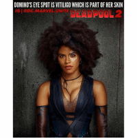 What do you think ? 🤔 - It's been Confirmed that Domino from DeadPool2 played by ZazieBeetz has Vitiligo for her eye spot. 😍👏🏽 I honestly love this, it's really realistic even if it's not ComicAccurate. 🤷🏽♂️ DEADPOOL HYPE ! MarvelCinematicUniverse 💥 @ZazieBeetz: DOMINOS EYE SPOT IS VITILIGO WHICH IS PART OF HER SKIN  61.MAREEDEADPOOL2 What do you think ? 🤔 - It's been Confirmed that Domino from DeadPool2 played by ZazieBeetz has Vitiligo for her eye spot. 😍👏🏽 I honestly love this, it's really realistic even if it's not ComicAccurate. 🤷🏽♂️ DEADPOOL HYPE ! MarvelCinematicUniverse 💥 @ZazieBeetz