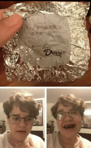 Dove Chocolate Loves Your Smile 😊: Dove Chocolate Loves Your Smile 😊