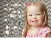 Bearkat: Down syndrome  happens  randomly  like flipping  coin or  winning  the lottery  a Step  own  aik  LEGACY  PHOTOGRAPHY Bearkat