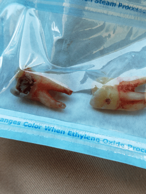 The reason for the pulling, wisdom teeth [NSFW]: eam Processe  h007 1  when Ethylene  eroc  anges Colo The reason for the pulling, wisdom teeth [NSFW]