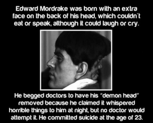 "epicjohndoe:  The Story Of The Demon Head: Edward Mordrake was born with an extra  face on the back of his head, which couldn  eat or speak, although it could laugh or cry  He begged doctors to have his ""demon head""  removed because he claimed it whispered  horrible things to him at night, but no doctor would  attempt it. He committed suicide at the age of 23. epicjohndoe:  The Story Of The Demon Head"