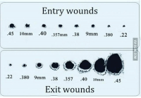 45: Entry wounds  .45 10mm .40 .357mm .38 9mm .380 .22  o0  22 380 9mm 38 357 .40 10mm 45  Exit wounds 45