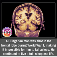 did you know fact point , education amazing dyk unknown facts daily facts💯 didyouknow follow follow4follow f4f factpoint instafact awesome world worldfacts like like4ike tag friends Don't forget to tag your friends 🤘: Fac Point  A Hungarian man was shot in the  frontal lobe during World War 1, making  it impossible for him to fall asleep. He  continued to live a full, sleepless life. did you know fact point , education amazing dyk unknown facts daily facts💯 didyouknow follow follow4follow f4f factpoint instafact awesome world worldfacts like like4ike tag friends Don't forget to tag your friends 🤘