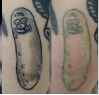 First session of laser tattoo removal done on this pickle rick tattoo!