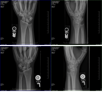 """pancakeke: unmovinggreatlibrary:   the-foley-knoll-horror:  pancakeke:   megatome:   pancakeke:  discsfine:  pancakeke: my bones!! feel free to look but please don't steal my bones!! reblog to steal her bones  NO  we're over halfway to stealing all of jess' bones   STOP!!   They took the whole skellington  Congratulations to pancakeke for becoming the first living person to have their bones stolen by tumblr users.   I love how you can't say """"first person"""" : Fluorospot Compact FD  Ex 00000186593914  X WRIST PA Right  Se: 414  Im: 1 (ASC)  Fluorospot Compact FD  Ex 00000186593914  X WRIST OBL Right  Se: 5/4  Im: 1 (ASC)  Mag: 0.74  (BSpline)  Mag: 0.74  (BSpline)  ว่า  47.9 kv  357.0 mA  0.0 s  47.9 kv  357.0 mA  0.0 s  W 2127 L: 2062  FOV16.5 x 10.icm  2445 L: 1962  FOV.16.5 x 8   Fluorospot Compact FD  Ex 00000186593919  X WRIST PALeft  Se: 1/4  Im: 1 (ASC)  Fluorospot Compact FD  Ex: 00000186593919  X WRIST OBL Left  Se: 2/4  Im 1 (ASC)  Mag: 0.82  (BSpline)  Mag: 0.75  (BSpline)  101  47.9 kV  3570 ㎃  0.0s  47.9 kV  357.0 mA  0.0s  W 2427 L: 2252  FOV.14.9 x 10  W 2517 L: 2126  FOV16.2 x 9.7cm pancakeke: unmovinggreatlibrary:   the-foley-knoll-horror:  pancakeke:   megatome:   pancakeke:  discsfine:  pancakeke: my bones!! feel free to look but please don't steal my bones!! reblog to steal her bones  NO  we're over halfway to stealing all of jess' bones   STOP!!   They took the whole skellington  Congratulations to pancakeke for becoming the first living person to have their bones stolen by tumblr users.   I love how you can't say """"first person"""""""
