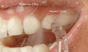 News, Tumblr, and Blog: Flushing Zone  Impact Zone dentagama1:    Water pick, also known as water flosser, is a tool for flossing your teeth and gums using a jet of water, rather than conventional string floss.