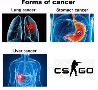 """<p>Cancer/community related memes are on a rise!!! INVEST! via /r/MemeEconomy <a href=""""http://ift.tt/2luFXtf"""">http://ift.tt/2luFXtf</a></p>: FormS Of cancer  Lung cancer  Stomach cancer  Liver cancer  CSAGO <p>Cancer/community related memes are on a rise!!! INVEST! via /r/MemeEconomy <a href=""""http://ift.tt/2luFXtf"""">http://ift.tt/2luFXtf</a></p>"""