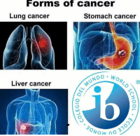 Wow, Cancer, and International Baccalaureate: Forms of Cancer  Lung cancer  Stomach cancer  NDO W  Liver cancer  Wow 3 By : Carlos Bueno