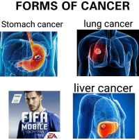 """<p>Shit ass game that everyone loses their mind over&hellip; via /r/memes <a href=""""http://ift.tt/2pbZS4x"""">http://ift.tt/2pbZS4x</a></p>: FORMS OF CANCER  Stomach cancer  lung cancer  liver cancer  FIFA  MOBILE  OKOHAMA  TYRES  ZA <p>Shit ass game that everyone loses their mind over&hellip; via /r/memes <a href=""""http://ift.tt/2pbZS4x"""">http://ift.tt/2pbZS4x</a></p>"""