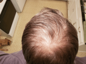 Friend told me today that I was starting to bald ( he's the only friend/coworker taller than me). I thought he was joking...: Friend told me today that I was starting to bald ( he's the only friend/coworker taller than me). I thought he was joking...