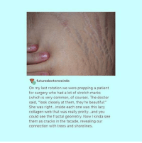 "Repost from @feedforfeminists · stretch marks are completely natural and normal!! and nothing to be ashamed of or embarrassed about! embrace your tiger stripes 🐯🐾: futuredoctorweirdo  On my last rotation we were prepping a patient  for surgery who had a lot of stretch marks  (which is very common, of course). The doctor  said, ""look closely at them, they're beautiful.""  She was right...inside each one was this lacy  collagen web that was really pretty..and you  could see the fractal geometry. Now I kinda see  them as cracks in the facade, revealing our  connection with trees and shorelines. Repost from @feedforfeminists · stretch marks are completely natural and normal!! and nothing to be ashamed of or embarrassed about! embrace your tiger stripes 🐯🐾"