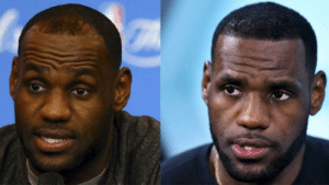 Hairline, Goal, and Back: Goal: Become so rich that your hairline comes back