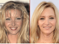 Friends, Memes, and Lisa Kudrow: Good Genes or Good Docs? Lisa Kudrow is serving up a Buffay of good looks. Here's a 31-year-old version back in 1995 (left) and 22 years later. You know the question. friends lisakudrow tmz goodgenes