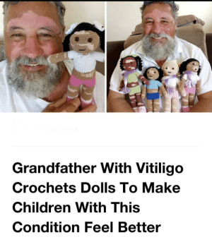 I can't even, this is too lovely 😩: Grandfather With Vitiligo  Crochets Dolls To Make  Children With This  Condition Feel Better I can't even, this is too lovely 😩