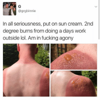 He need some milk: @grgbinnie  In all seriousness, put on sun cream. 2nd  degree burns from doing a days work  outside lol. Am in fucking agony He need some milk
