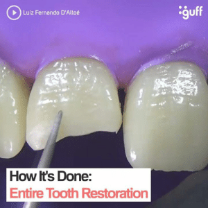 Memes, 🤖, and How: guff  Luiz Fernando D'Altoé  How It's Done:  Entire Tooth Restoration YIKES!