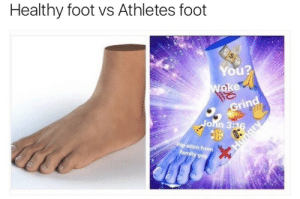 Foot, You, and Grin: Healthy foot vs Athletes foot  You?  Grin  9