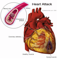 "Being Alone, Click, and Facebook: Heart Attack  Blood clot  Artery  Medicine Net.com 2004  Cholesterol  plaque  Coronary arteries_  Healthy muscle  Dying muscle <p><a href=""https://denothedog.tumblr.com/post/165126008416/blacks-n-chastity-150shadesofblack"" class=""tumblr_blog"">denothedog</a>:</p><blockquote> <p><a href=""https://blacks-n-chastity.tumblr.com/post/165089216537/150shadesofblack-blackglamgoddess-fithome"" class=""tumblr_blog"">blacks-n-chastity</a>:</p> <blockquote> <p><a class=""tumblr_blog"" href=""http://150shadesofblack.tumblr.com/post/132677942879"">150shadesofblack</a>:</p> <blockquote> <p><a class=""tumblr_blog"" href=""http://blackglamgoddess.tumblr.com/post/132666769745"">blackglamgoddess</a>:</p> <blockquote> <p><a class=""tumblr_blog"" href=""http://fithome.tumblr.com/post/50608392001"">fithome</a>:</p> <blockquote> <p><a class=""tumblr_blog"" href=""http://imgonnariverdance.tumblr.com/post/50173935565"">imgonnariverdance</a>:</p> <blockquote> <p><a class=""tumblr_blog"" href=""http://shadowkat104.tumblr.com/post/43664074173"">shadowkat104</a>:</p> <blockquote> <p><a class=""tumblr_blog"" href=""http://kellyjacobsbooks.tumblr.com/post/43653987667"">kellyjacobsbooks</a>:</p> <blockquote> <p>HOW TO SURVIVE A HEART ATTACK WHEN ALONE<br/><br/> Let's say it's 6.15pm and you're going home (alone of course), after an unusually hard day on the job. You're really tired, upset and frustrated. Suddenly you start experiencing severe pain in your chest that starts to drag out into your arm and up into your jaw. You are only about five miles from the hospital nearest your home. Unfortunately you don't know if you'll be able to make it that far. You have been trained in CPR, but the guy that taught the course did not tell you how to perform it on yourself..!!<br/><br/> NOW HOW TO SURVIVE A HEART ATTACK WHEN ALONE…<br/><br/> Since many people are alone when they suffer a heart attack, without help, the person whose heart is beating improperly and who begins to feel faint, has only about 10 seconds left before losing consciousness.<br/><br/> However, these victims can help themselves by coughing repeatedly and very vigorously.<br/><br/> A deep breath should be taken before each cough, and the cough must be deep and prolonged, as when producing sputum from deep inside the chest.<br/><br/> A breath and a cough must be repeated about every two seconds without let-up until help arrives, or until the heart is felt to be beating normally again.<br/><br/> Deep breaths get oxygen into the lungs and coughing movements squeeze the heart and keep the blood circulating.<br/><br/> The squeezing pressure on the heart also helps it regain normal rhythm. In this way, heart attack victims can perhaps buy precious time to get themselves to a phone and dial 911.<br/><br/> Rather than sharing another joke please contribute by broadcasting this which can save a person's life! <br/><br/> Be prepared and become part of the solution. Get your free next-of-kin notification card today. Click here: <a href=""http://www.facebook.com/l.php?u=https%3A%2F%2Fwww.InCaseOfEmergencyCard.com%2F&amp;h=HAQFUhUsH&amp;s=1"">https://</a><a href=""http://www.InCaseOfEmergencyCard.com/""></a><a href=""http://www.InCaseOfEmergencyCard.com/""></a><a href=""http://www.InCaseOfEmergencyCard.com/"">www.InCaseOfEmergencyCard.com/</a></p> </blockquote> <p>major signal boost</p> </blockquote> <p>Reblogging cause this could save someone's life</p> </blockquote> <p>This could save many lives, reblog</p> </blockquote> <p>!!!!!!!!!!</p> </blockquote> <p>!!!!!!!!!!!!!!!!!!</p> </blockquote> <h2> We should all know this<br/></h2> </blockquote> <p style="""">Glad to share<br/></p> </blockquote>"