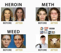 meth: HEROIN  BEFORE AFTER  WEED  BEFORE AFTER  METH  BEFORE AFTER  CNN BBC  N NBC  BEFORE AFTER