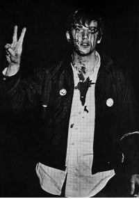 Police, Reddit, and Riot: historicaltimes: Columbia student flashes the peace sign after being beaten by riot police at an antiwar demonstration, April 1968 via reddit