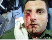 "Here's a picture of a US Border Patrol Agent hit in the face by a rock thrown by a member of the migrant caravan. Still think they're ""peaceful?"" Build That F🇺🇸ckin' Wall.: Homeland Security Today Here's a picture of a US Border Patrol Agent hit in the face by a rock thrown by a member of the migrant caravan. Still think they're ""peaceful?"" Build That F🇺🇸ckin' Wall."