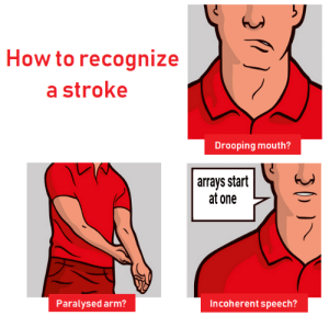 How to recognize a stroke: How to recognize  a stroke  Drooping mouth?  arrays start  at one  Paralysed arm?  Incoherent speech? How to recognize a stroke
