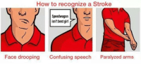 Best, How To, and How: How to recognize a Stroke  Speedwagon  isn't best girl7  Face drooping  Confusing speech  Paralyzed arms