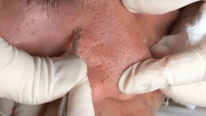 How to Remove Blackheads and Whiteheads on Nose Easy HeaLa