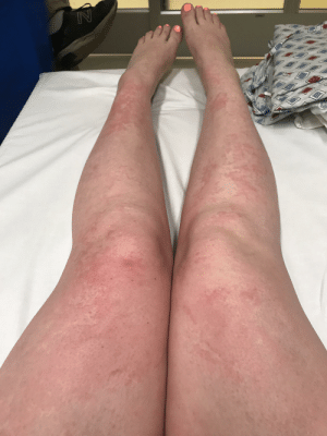 I'm allergic to my new carpets.: I'm allergic to my new carpets.