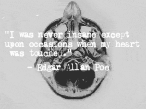 """https://iglovequotes.net/: """"I was never insane except  upon occasons when my heart  was toucned  Edger All an Poe https://iglovequotes.net/"""