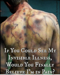 Memes, 🤖, and In Pain: IF You CouLD SEE MY  INVISIBLE ILLNESS  WouLD You FINALLY  BELIEVE I'M IN PAIN? invisableillnessesbelike sjogrenssyndromfighter ssawareness chronicpain spooniesunite everythinghurts findacure ✊💜✊💜✊💜✊💜✊💜✊