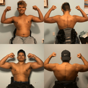 [image]1.5 years ago I was in a motorcycle accident that left me paralyzed from the chest down.I was in a dark place but 1 year ago I started going to the gym.Using motivation from people around me. Anything is possible all it takes is dedication and consistency!Positive vibes only! @paulowheelz: [image]1.5 years ago I was in a motorcycle accident that left me paralyzed from the chest down.I was in a dark place but 1 year ago I started going to the gym.Using motivation from people around me. Anything is possible all it takes is dedication and consistency!Positive vibes only! @paulowheelz