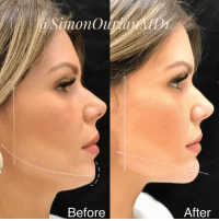 imonOu Before After Non-Surgical Jaw and Chin Contouring