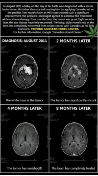 mri: In August 2011 a baby, on the day of his birth, was diagnosed with a severe  brain tumor. His father then started treating him by applying Cannabis oil on  the pacifier. Two months later an MRI scan showed such a significant  improvement, the pediatric  oncologist agreed to continue the treatment  without chemotherapy. Four months later, the tumor was gone. Eight months  later, the scar tissues have fully recovered. The baby eight-months old at the  time, has completely recovered from severe cancer with Cannabis as his only  treatment. PROVING CANNABIS CURES CANCER.  For further information, Google Cannabis oil and Cancer  DIAGNOSIS: AUGUST 2011  2 MONTHS LATER.  The white mass is the tumor The tumor has significantly shrunk  4 MONTHS LATER  8 MONTHS LATER.  The tumor has vanished  The brain has completely healed