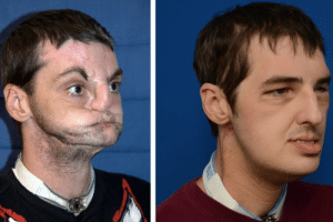 Incredibly well performed facial transplant: Incredibly well performed facial transplant
