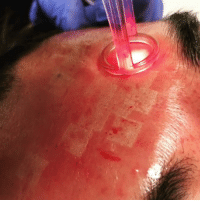 Individual deep scars can be treated at the same time as the superficial skin texture. 💥 This deeper handpiece allows for microscopic 🔬 small channels of laser energy to cut 🔪through deep or depressed scars and stimulate collagen production and skin remodeling. 💁🏻‍♂️ . . . . . credit: @jasonemermd laser cosmetology dermatology skin: Individual deep scars can be treated at the same time as the superficial skin texture. 💥 This deeper handpiece allows for microscopic 🔬 small channels of laser energy to cut 🔪through deep or depressed scars and stimulate collagen production and skin remodeling. 💁🏻‍♂️ . . . . . credit: @jasonemermd laser cosmetology dermatology skin
