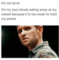 Memes, 🤖, and Moose: it's not acne  it's my soul slowly eating away at my  vessel because it is too weak to hold  my power - Not Moose