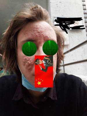I've been homeless in Asia for 3 months and my skin has absolutely exploded with painful acne: I've been homeless in Asia for 3 months and my skin has absolutely exploded with painful acne