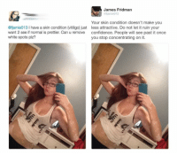 [X-post] James is such an awesome person. Just shows that you can be funny and still be kind to others.: James Fridman  @fjamie013  @fjamie013 I have a skin condition (vitiligo) just  want 2 see if normal is prettier. Can u remove  white spots plz?  Your skin condition doesn't make you  less attractive. Do not let it ruin your  confidence. People will see past it once  you stop concentrating on it. [X-post] James is such an awesome person. Just shows that you can be funny and still be kind to others.