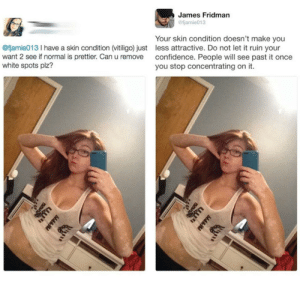 Confidence, White, and Once: James Fridman  @fjamie013  Your skin condition doesn't make you  less attractive. Do not let it ruin your  confidence. People will see past it once  you stop concentrating on it.  @fjamie013 I have a skin condition (vitiligo) just  want 2 see if normal is prettier. Can u remove  white spots plz?  P  PHPIH James is a lad