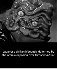 Exposion: Japanese civilian hideously deformed by  the atomic exposion over Hiroshima-1945