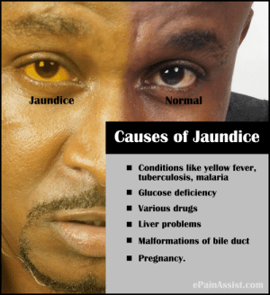Drugs, Pregnancy, and Com: Jaundice  Normal  Causes of Jaundice  Conditions like yellow fever,  tuberculosis, malaria  Glucose deficiency  Various drugs  I Liver problems  I Malformations of bile duct  Pregnancy.  ePainAssist.com What if its not a colour correction issue, what if its more serious?